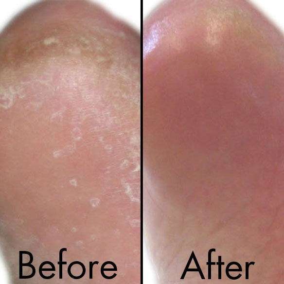 Corn and Callus Serum - View 2